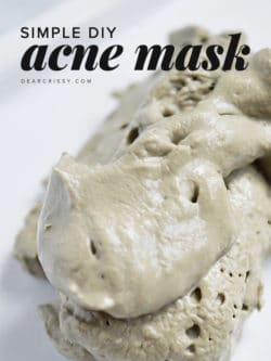 DIY Acne Mask - Unclog pores and blast blemishes and blackheads with this simple homemade DIY acne mask recipe!