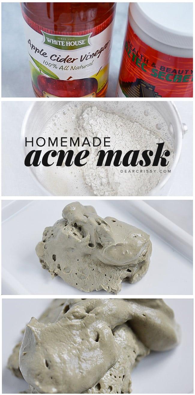 Bentonite Clay Acne Mask