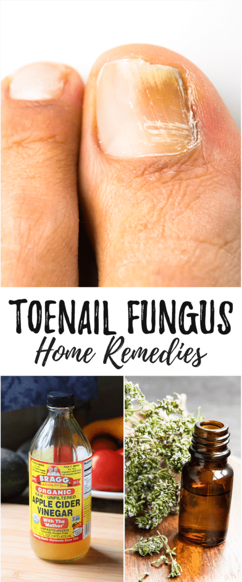 Home Remedies for Toenail Fungus That Really Work - Toenail fungus can be embarrassing. Cure nail fungus at it's source using these powerful and simple home remedies.